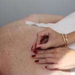 Acupunctura/ FOTO: Dan Bodea