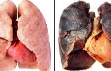 Doar 2 % dintre clujeni reușesc să renunțe singuri la fumat